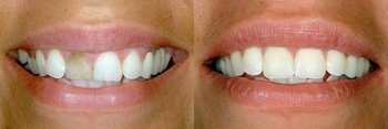 Smile Gallery - Ogden Valley Dental, Naperville Dentist