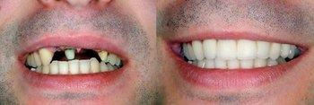 Smile Gallery - Ogden Valley Dental, Naperville Dentist