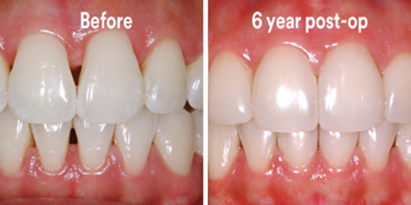 BioClear Diastema Closure and Black Triangle Closure  - Ogden Valley Dental, Naperville Dentist