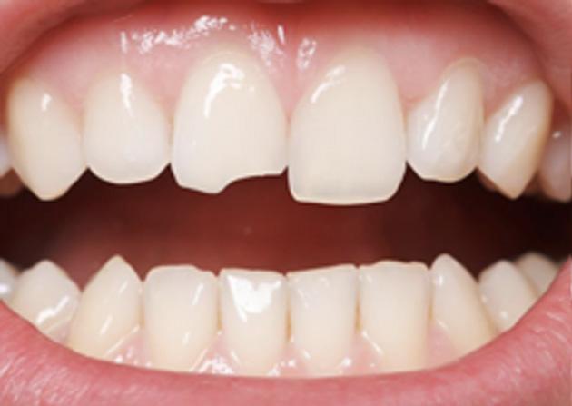 Cosmetic Bonding  - Ogden Valley Dental, Naperville Dentist