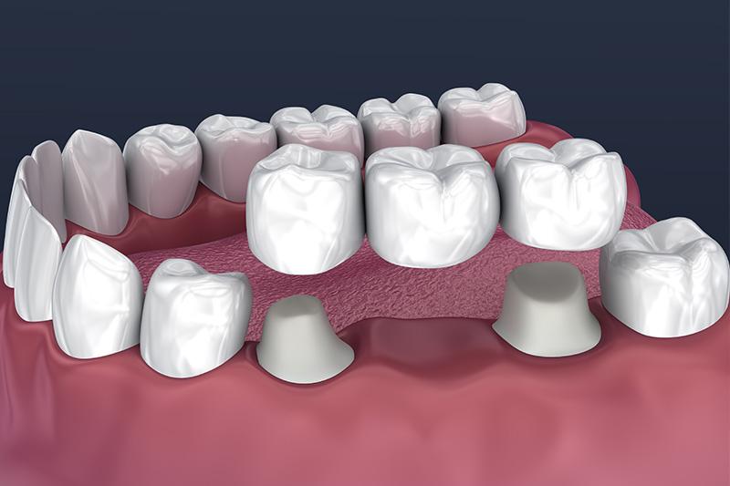 Crowns and Bridges, Inlays and Onlays  - Ogden Valley Dental, Naperville Dentist
