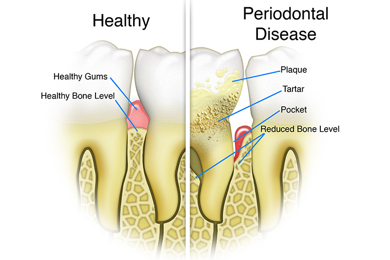 Scaling & Root Planings (Deep Cleanings)  - Ogden Valley Dental, Naperville Dentist