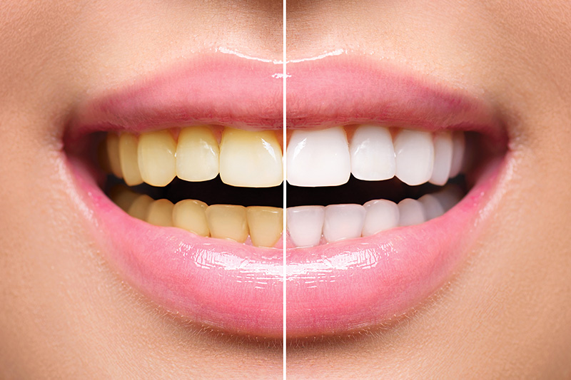 Teeth Whitening - Ogden Valley Dental, Naperville Dentist