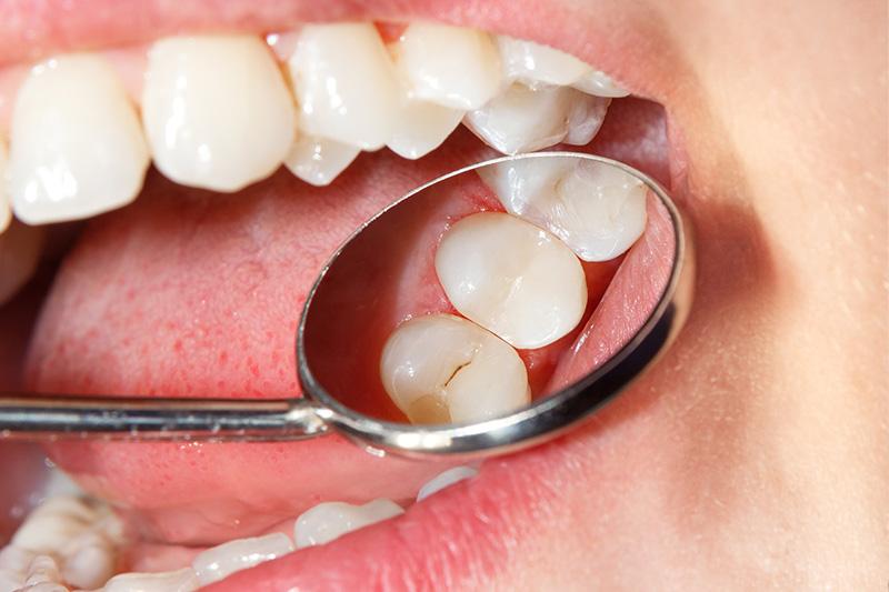 Tooth Colored Composite Fillings  - Ogden Valley Dental, Naperville Dentist