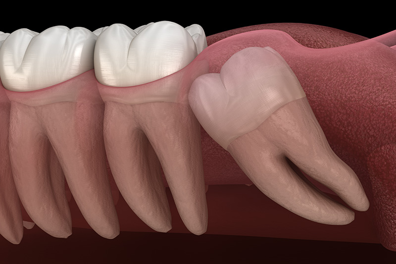 Wisdom Teeth Extractions (with Sedation)  - Ogden Valley Dental, Naperville Dentist