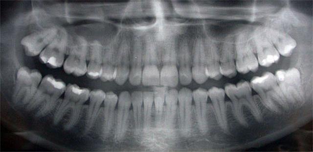 Ogden Valley Dental